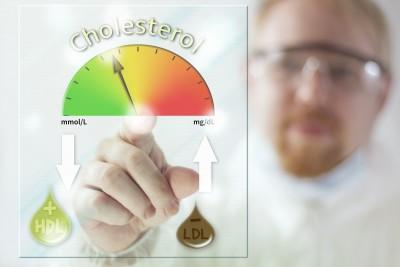 cholesterin labor © Oskari Porkka shutterstock